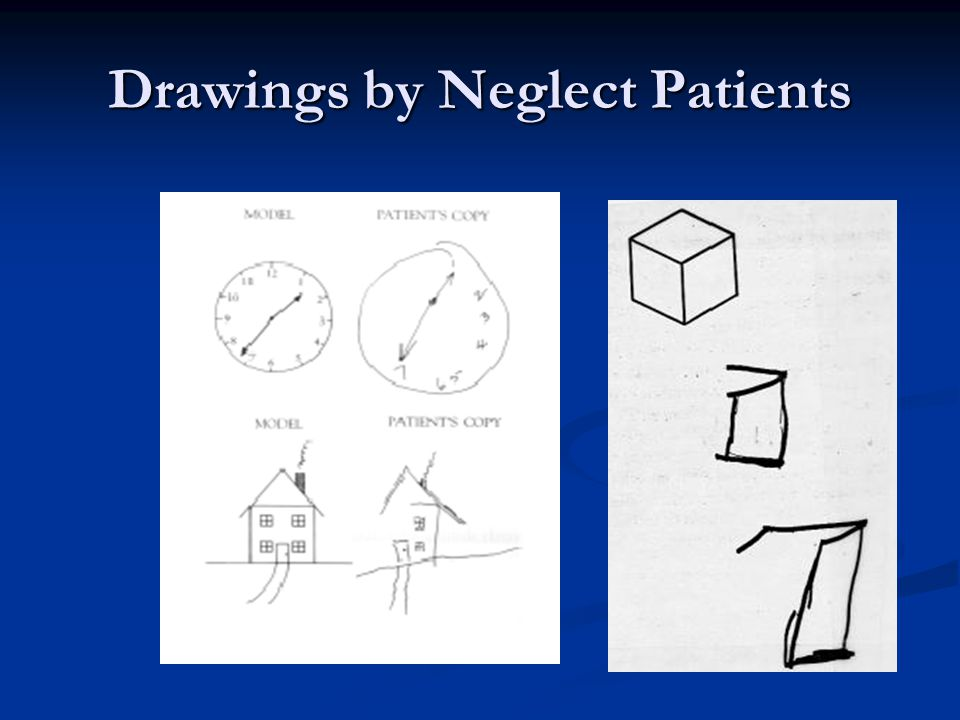 Drawings by Neglect Patients