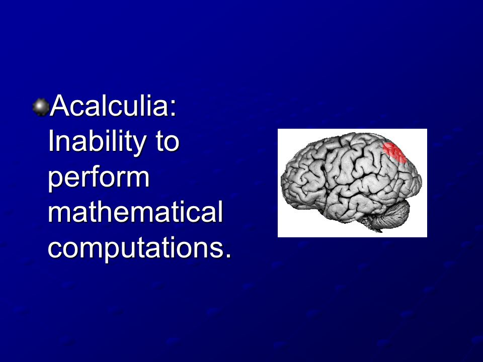 Acalculia: Inability to perform mathematical computations.
