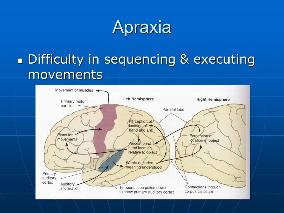 Apraxia Difficulty in sequencing & executing movements