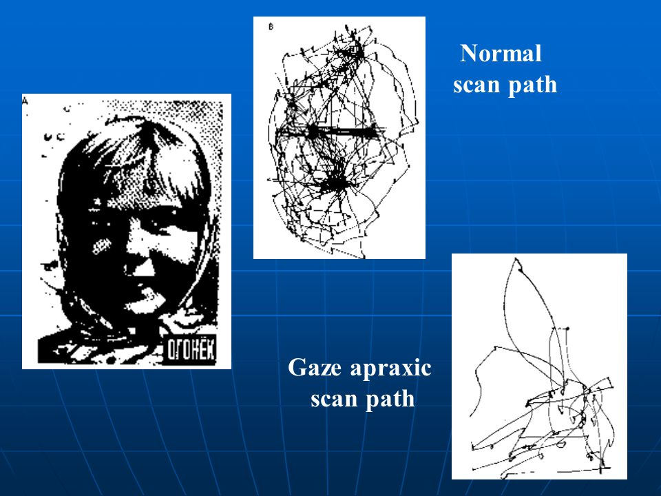 Normal scan path Gaze apraxic scan path