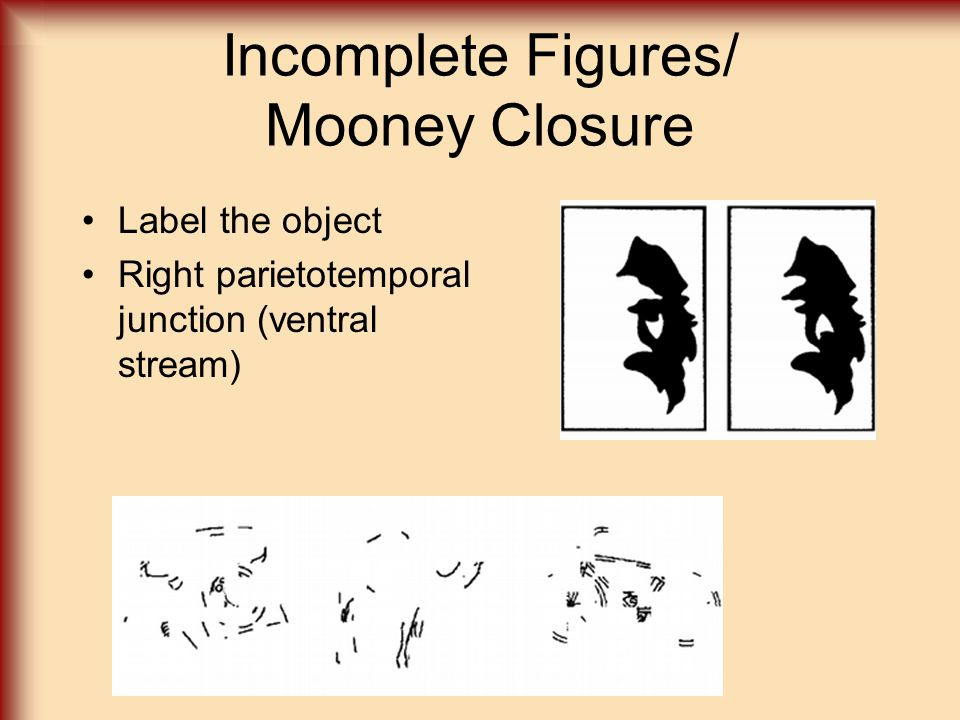 Incomplete Figures/ Mooney Closure