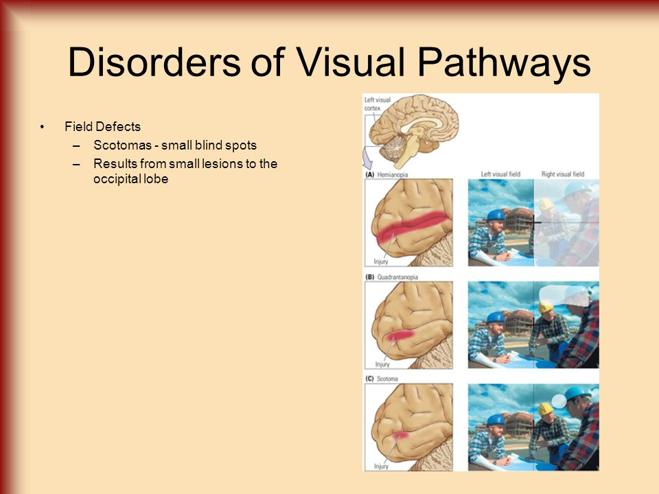 Disorders of Visual Pathways