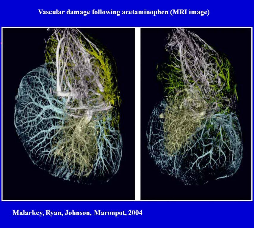 Vascular damage following acetaminophen (MRI image)