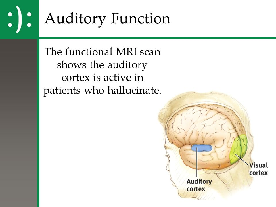 Auditory Function The functional MRI scan shows the auditory cortex is active in patients who hallucinate.