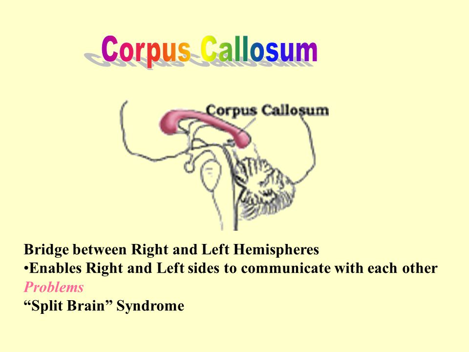Corpus Callosum Bridge between Right and Left Hemispheres