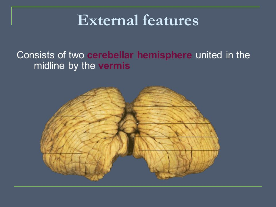 External features Consists of two cerebellar hemisphere united in the midline by the vermis