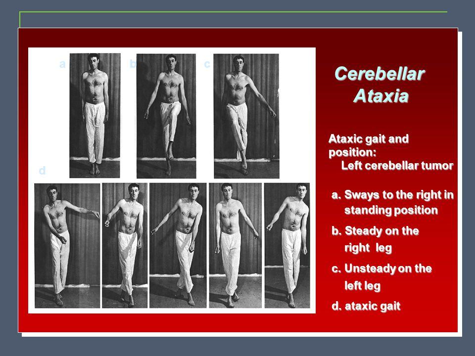 Cerebellar Ataxia a b c d Ataxic gait and position:
