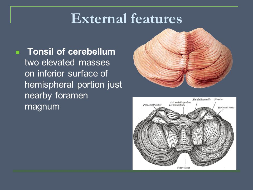 External features Tonsil of cerebellum two elevated masses on inferior surface of hemispheral portion just nearby foramen magnum.