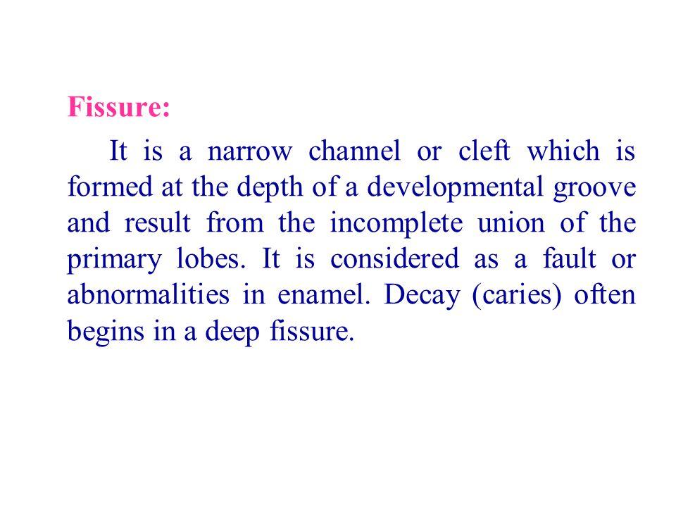 Fissure: