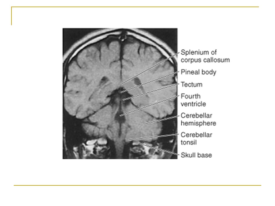 MRI at the level of the 4th ventricle