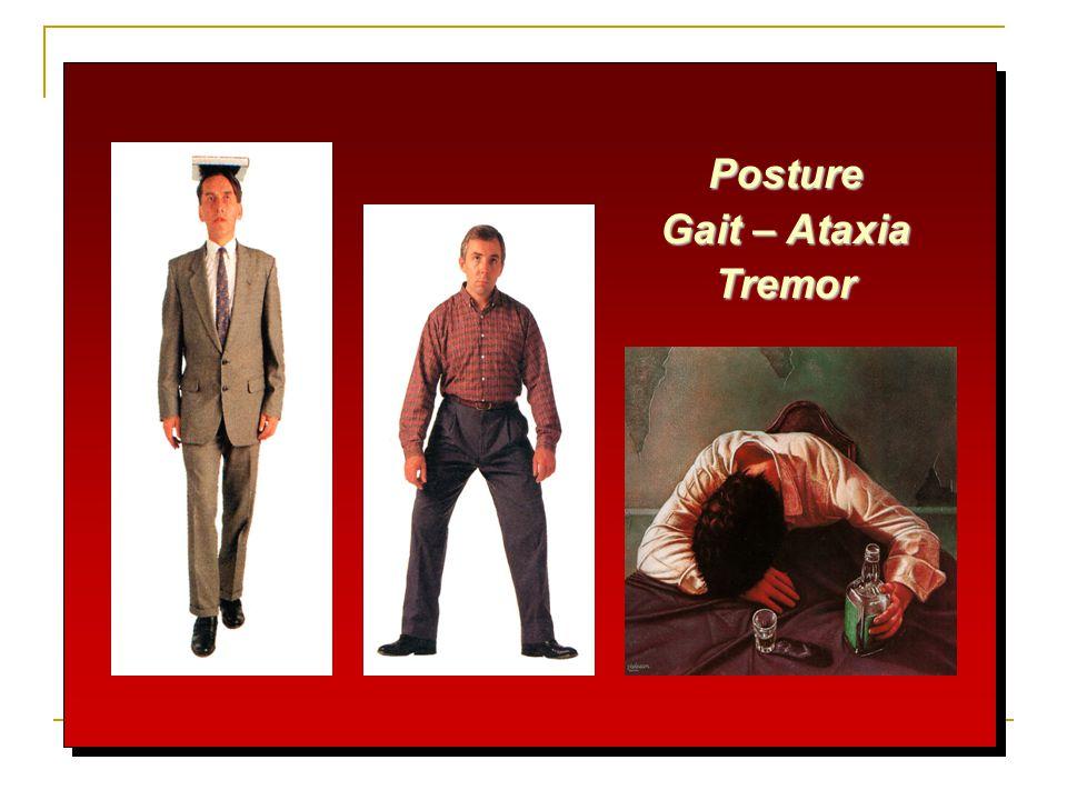 Posture Gait – Ataxia Tremor