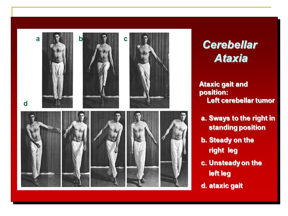 Cerebellar Ataxia a b c d Ataxic gait and position: