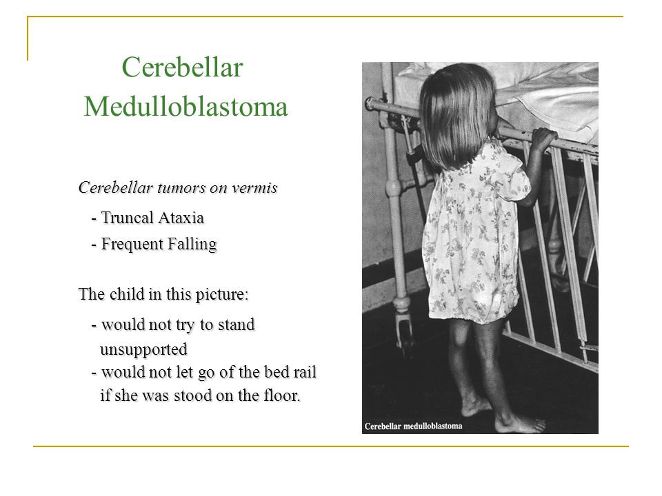 Cerebellar Medulloblastoma Cerebellar tumors on vermis