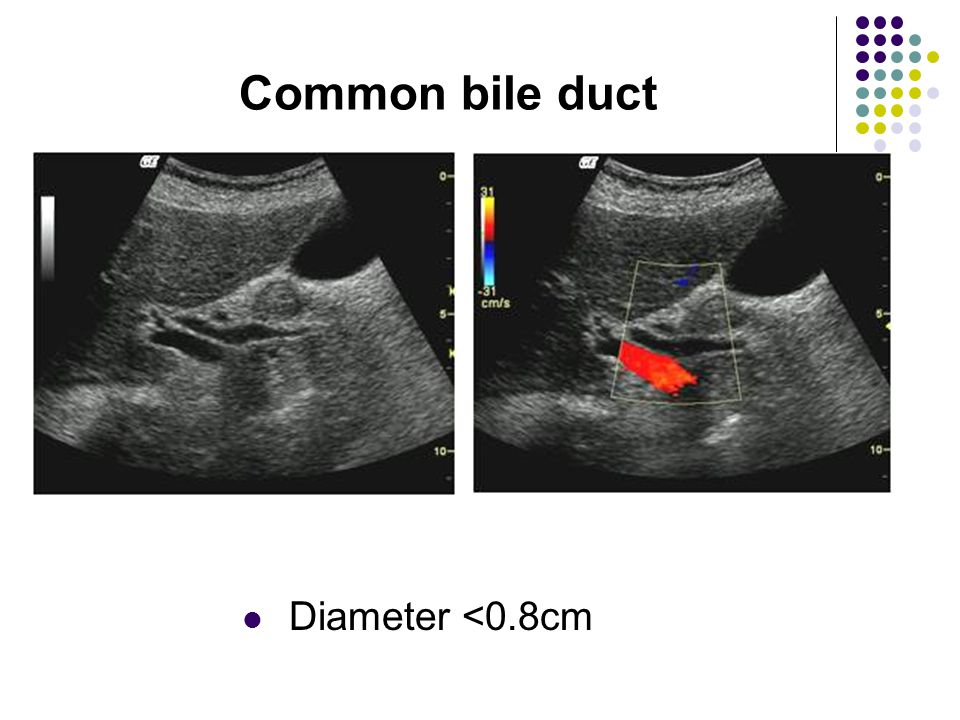 Common bile duct Diameter <0.8cm