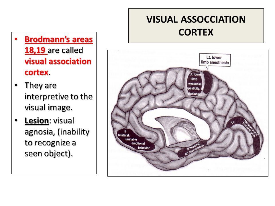 VISUAL ASSOCCIATION CORTEX