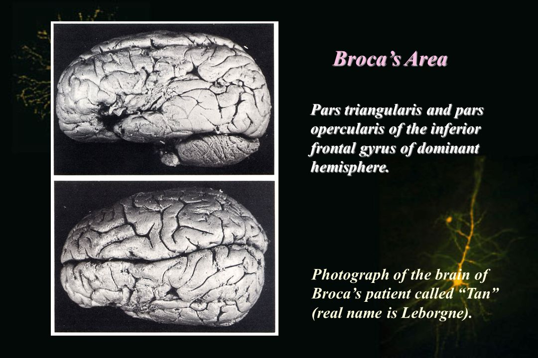 Broca's Area Pars triangularis and pars opercularis of the inferior frontal gyrus of dominant hemisphere.