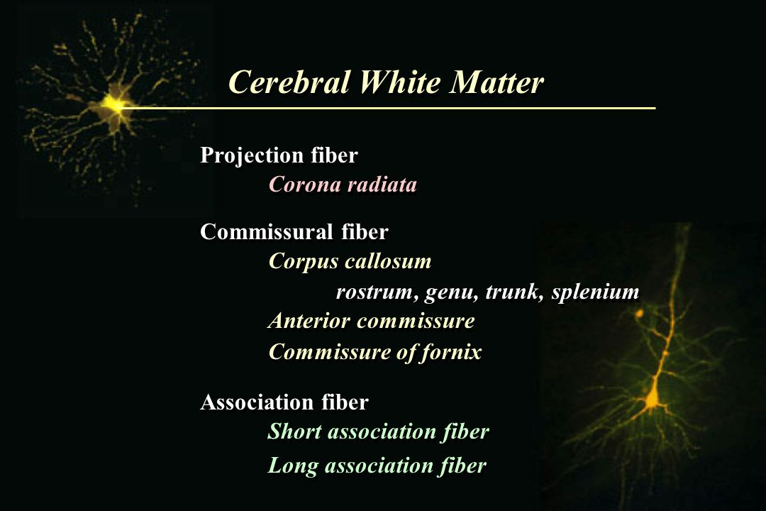 Cerebral White Matter Projection fiber Corona radiata
