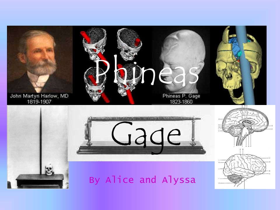 Phineas Gage By Alice and Alyssa