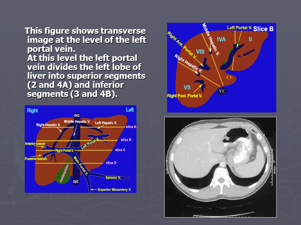 This figure shows transverse image at the level of the left portal vein.