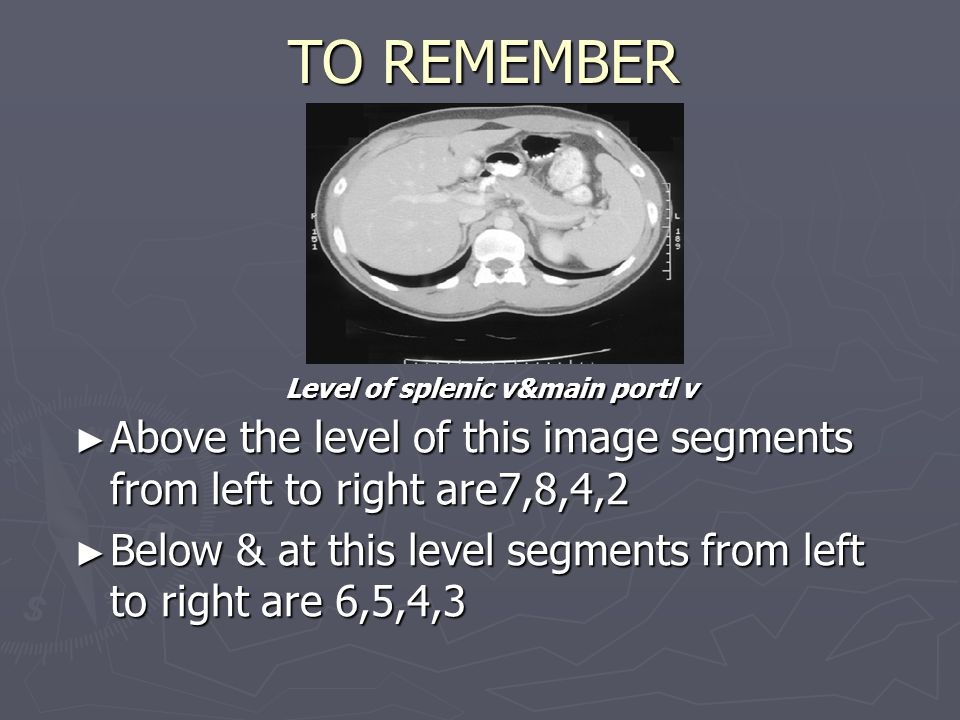 TO REMEMBER Level of splenic v&main portl v. Above the level of this image segments from left to right are7,8,4,2.