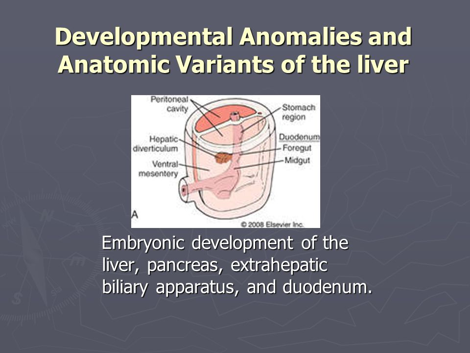 Developmental Anomalies and Anatomic Variants of the liver