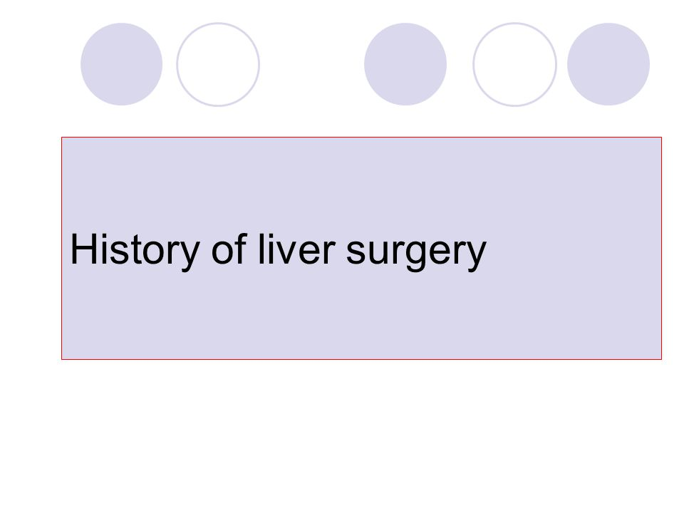 History of liver surgery