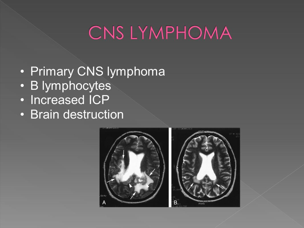 Primary CNS lymphoma B lymphocytes Increased ICP Brain destruction