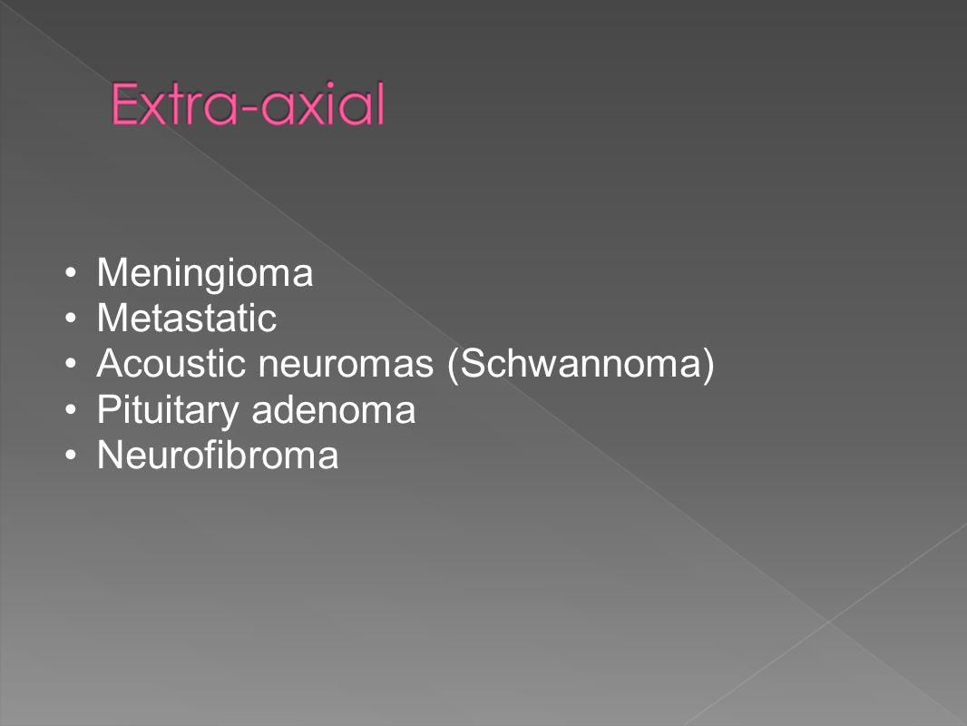 Acoustic neuromas (Schwannoma) Pituitary adenoma Neurofibroma