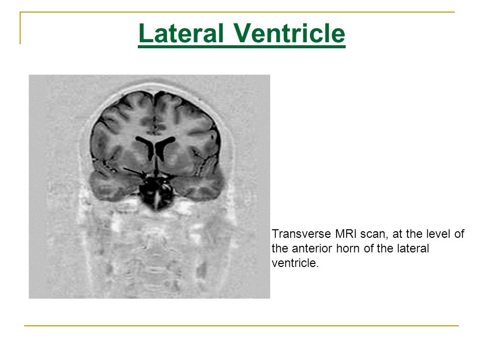 Lateral Ventricle Transverse MRI scan, at the level of the anterior horn of the lateral ventricle.