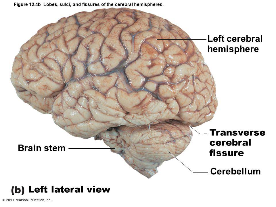 Left cerebral hemisphere Transverse cerebral fissure Brain stem