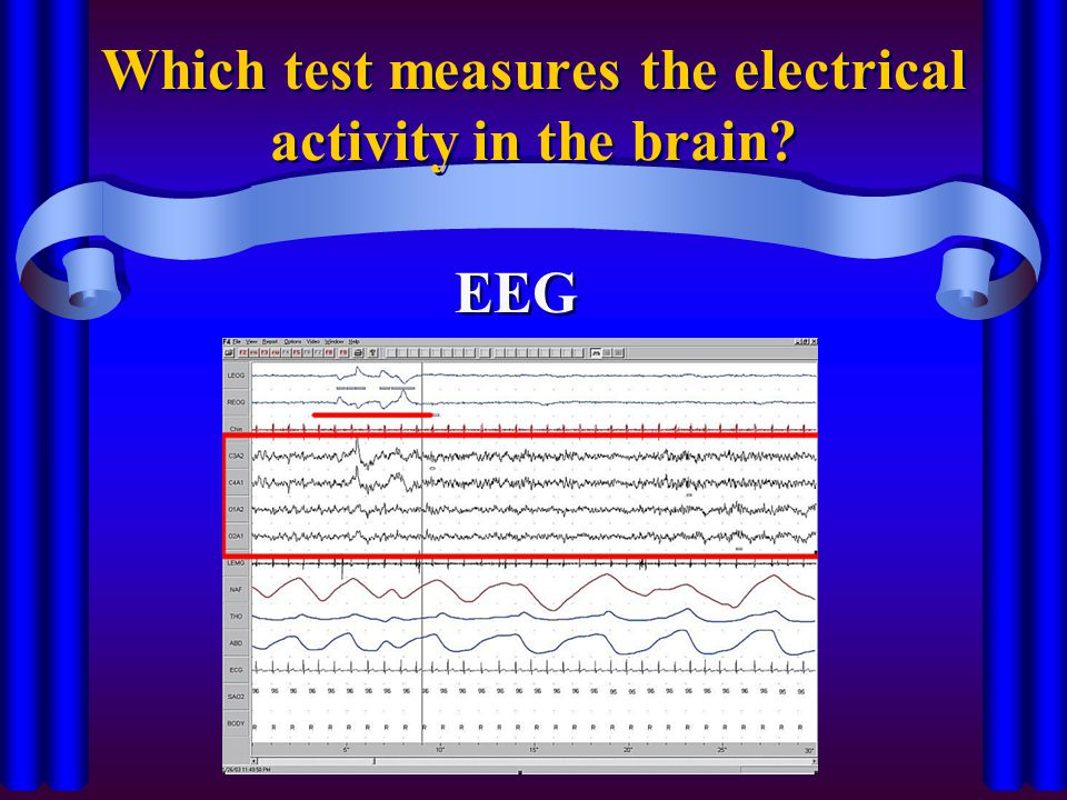 Which test measures the electrical activity in the brain