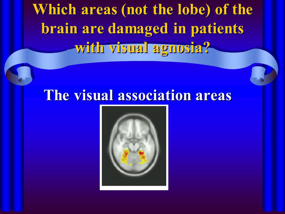 The visual association areas