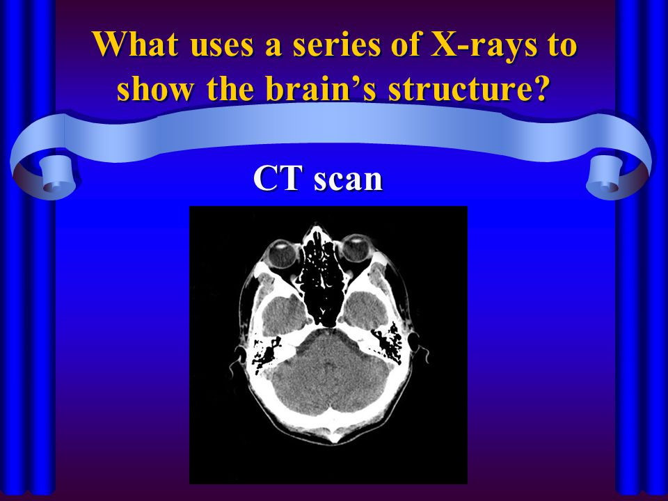 What uses a series of X-rays to show the brain's structure