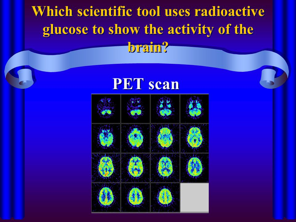 Which scientific tool uses radioactive glucose to show the activity of the brain