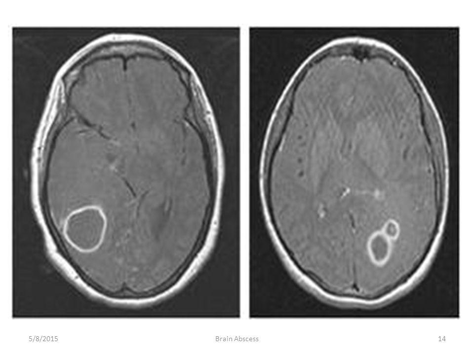 4/15/2017 Brain Abscess