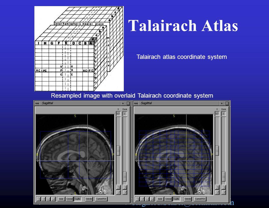Talairach Atlas Talairach atlas coordinate system