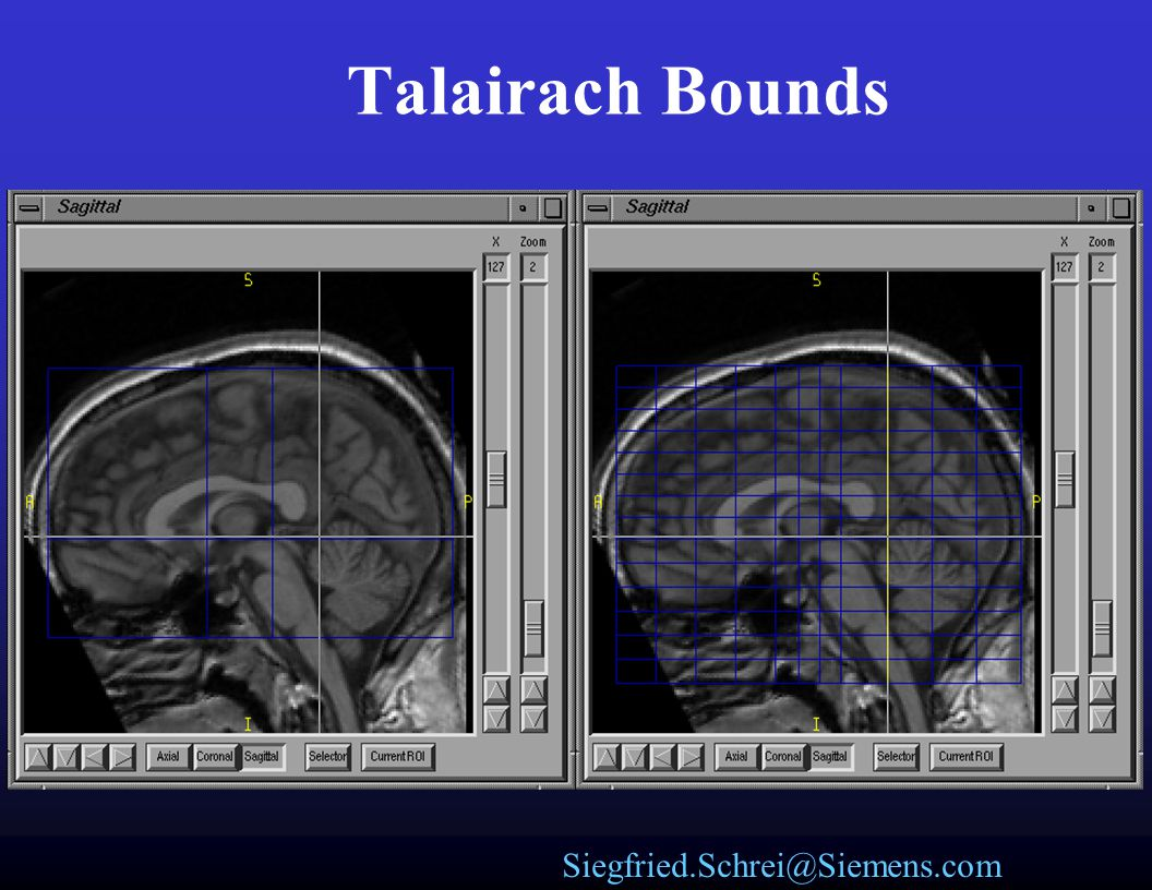 Talairach Bounds
