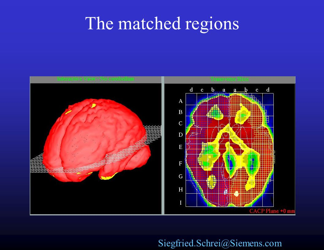 The matched regions