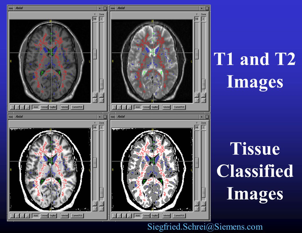 T1 and T2 Images Tissue Classified Images