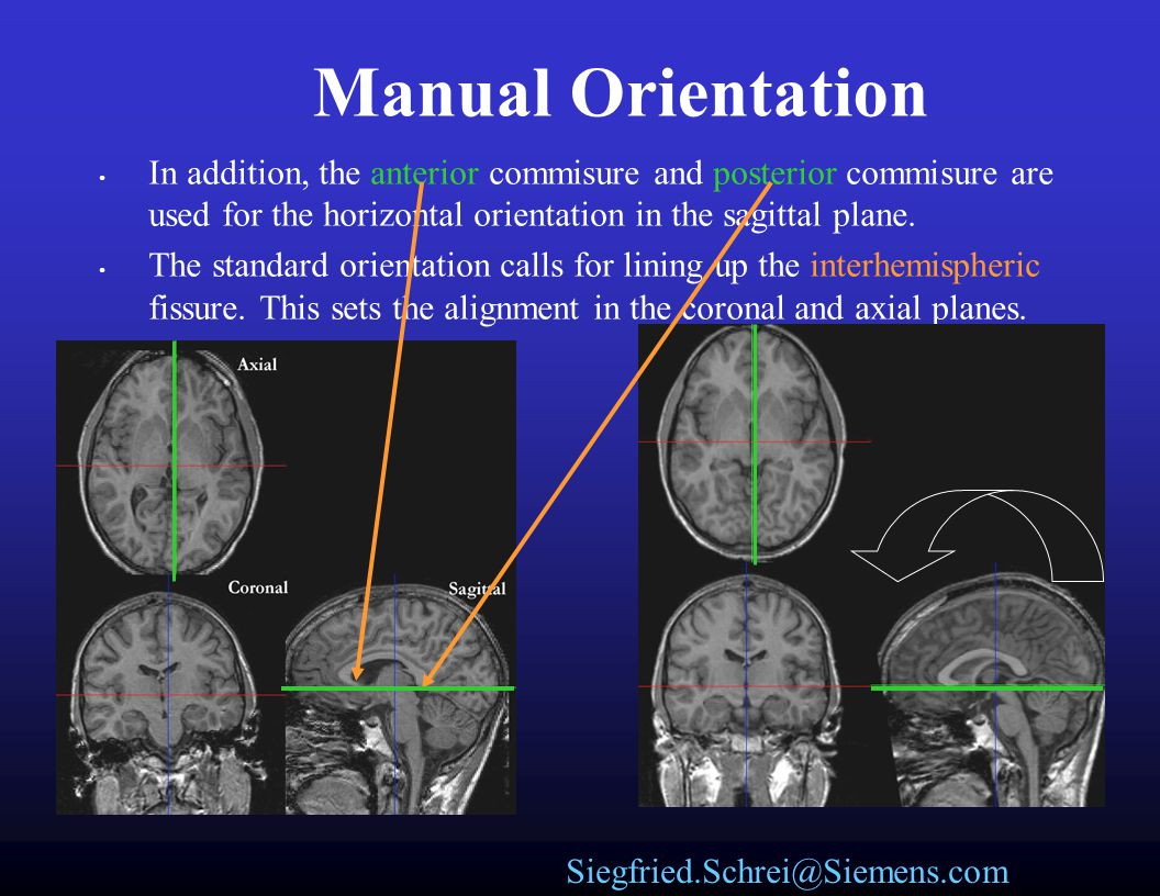 Manual Orientation In addition, the anterior commisure and posterior commisure are used for the horizontal orientation in the sagittal plane.