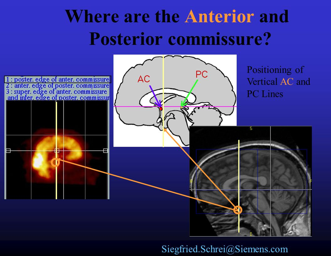 Where are the Anterior and Posterior commissure