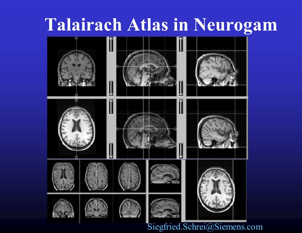Talairach Atlas in Neurogam