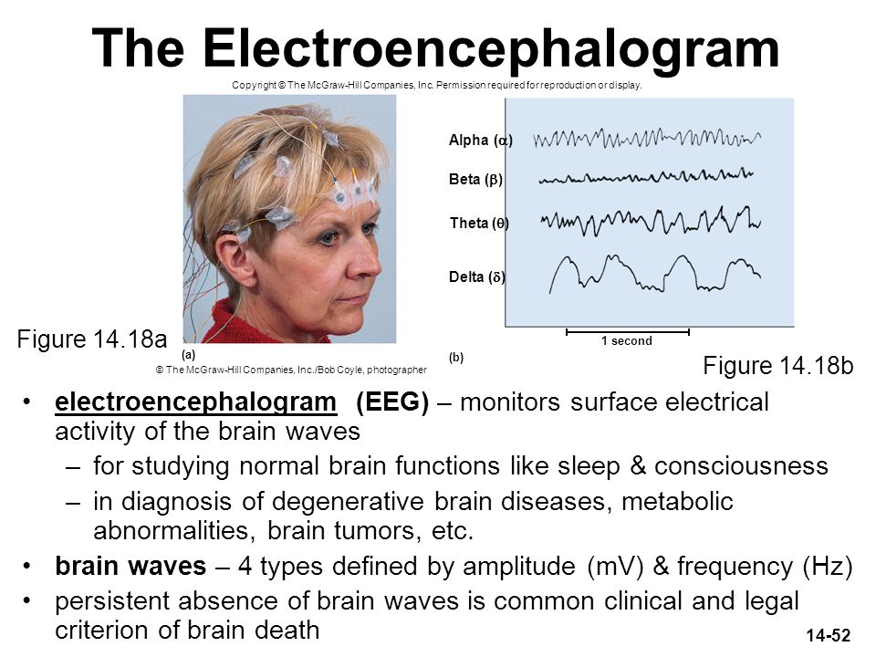 The Electroencephalogram