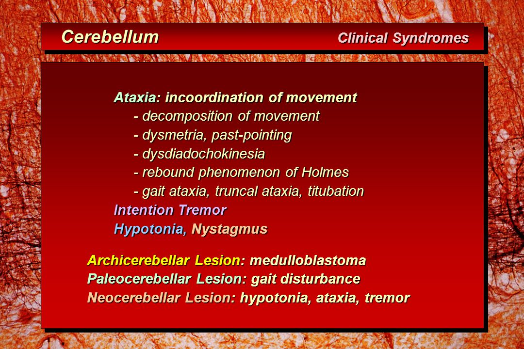 Cerebellum Clinical Syndromes