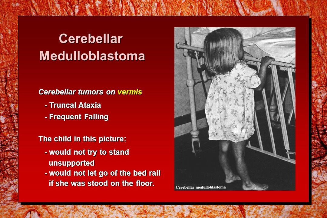 Cerebellar Medulloblastoma