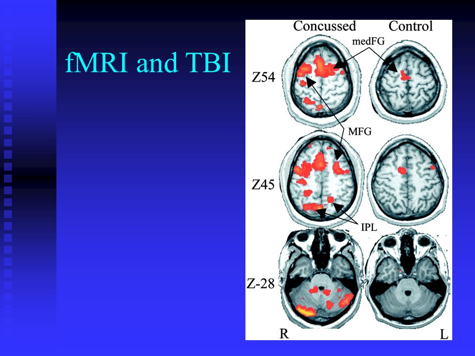 fMRI and TBI