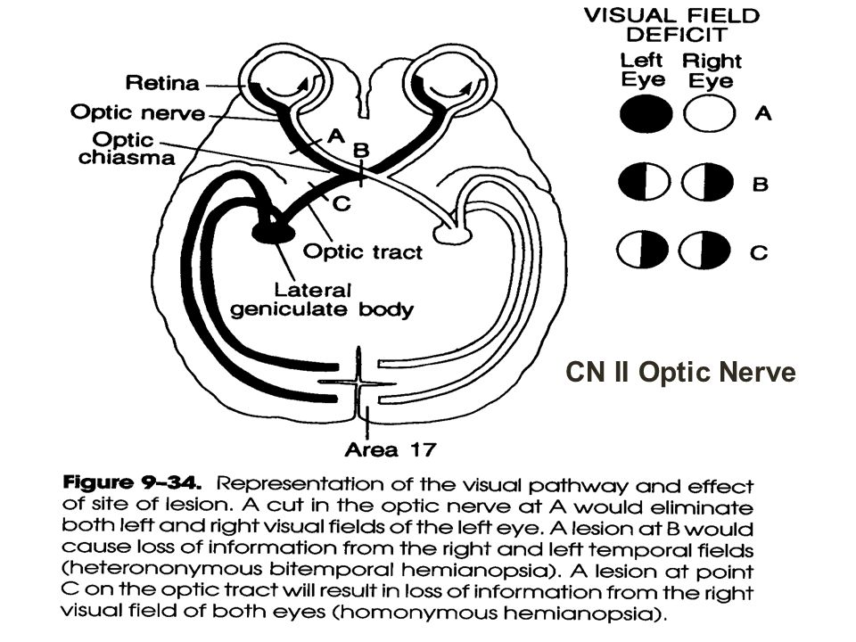 CN II Optic Nerve