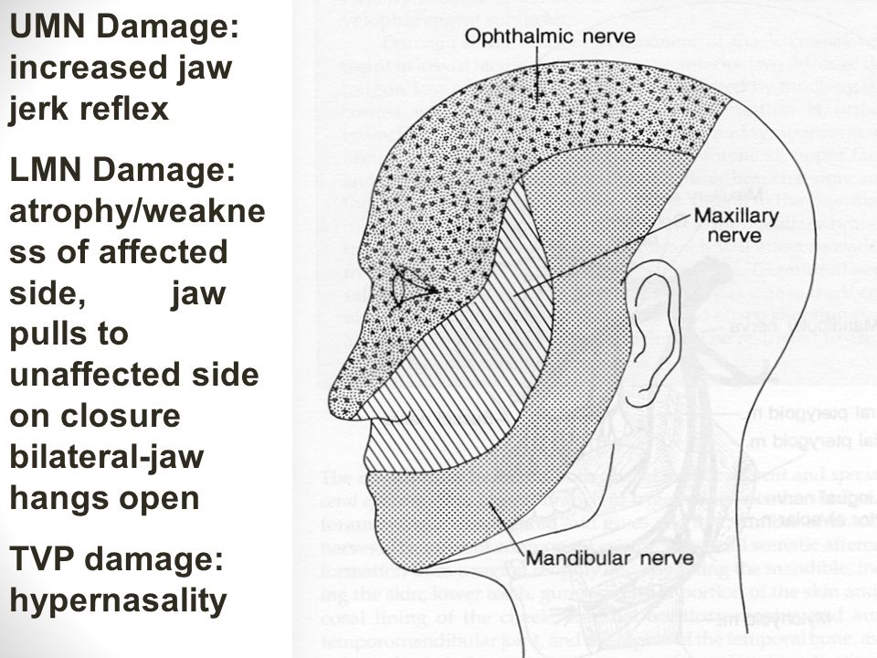 UMN Damage: increased jaw jerk reflex