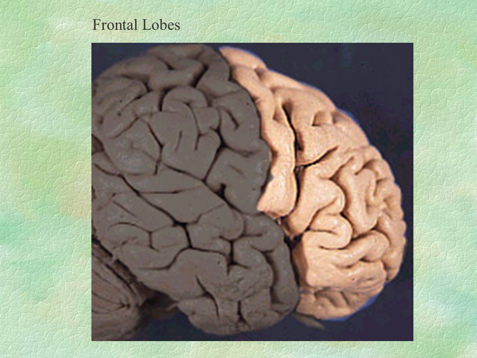 Frontal Lobes