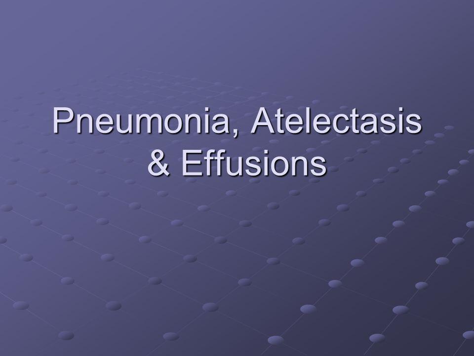 Pneumonia, Atelectasis & Effusions